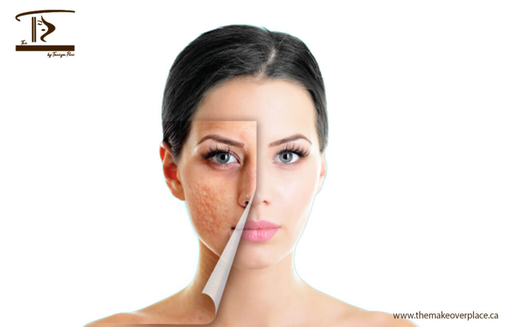 How to treat stubborn acne scars? DIY and Scar-Removal treatments